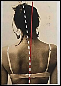 Podologie posturale